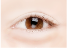 Steps for Lower Eyelid Surgery Method