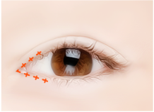 Steps for Magic Epicanthoplasty Surgery