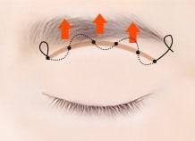 Sub brow lifting surgery method