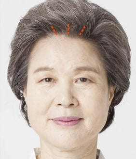 Forehead and brows lift surgery method