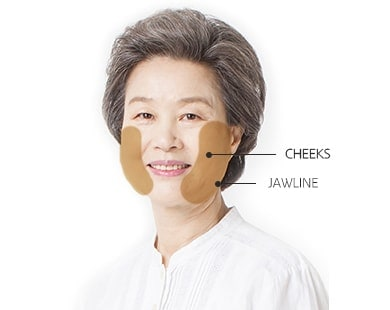 Minimum Incision Facelift surgery area