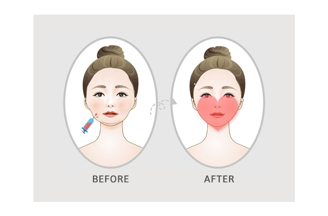 Non-surgical Heart Line Face Before and After