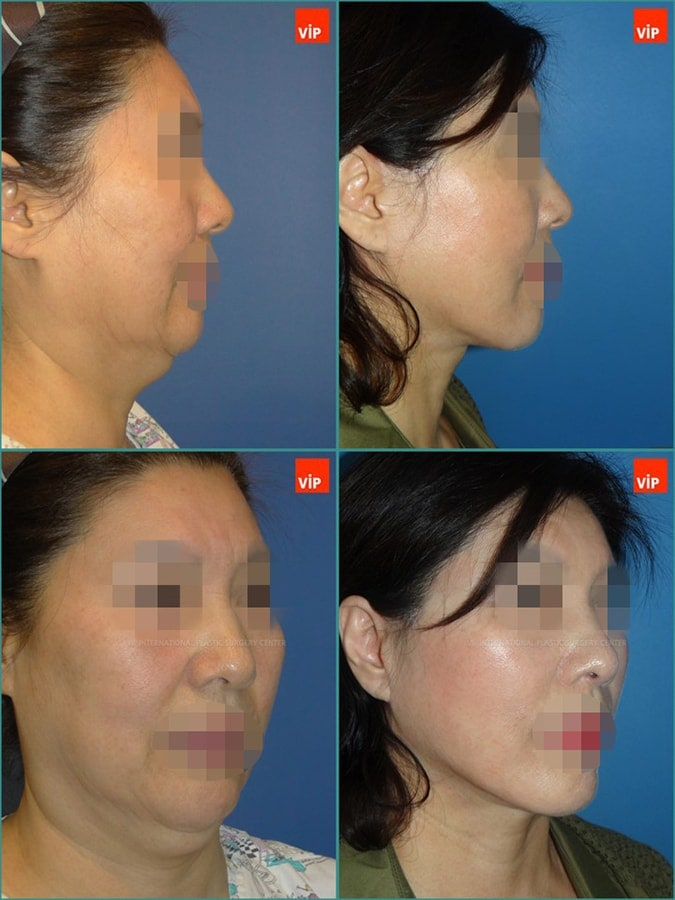 Anti aging surgeries –facelift, necklift