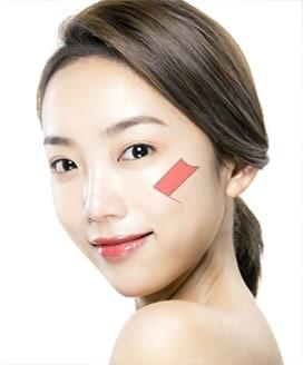 Cheekbone Reduction Surgery Method – Step 1