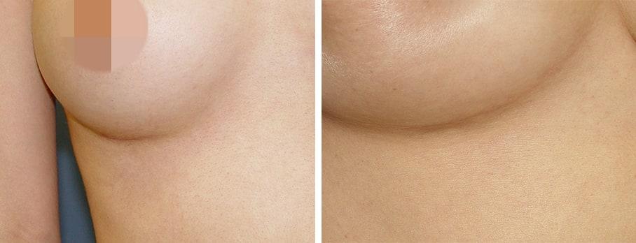 Minimization of scar tissues after rib cartilage rhinoplasty