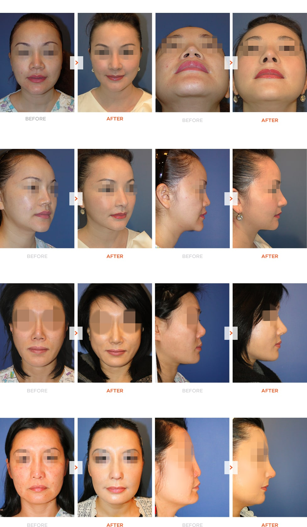 Mid-face augmentation and Rhinoplasty Before and After