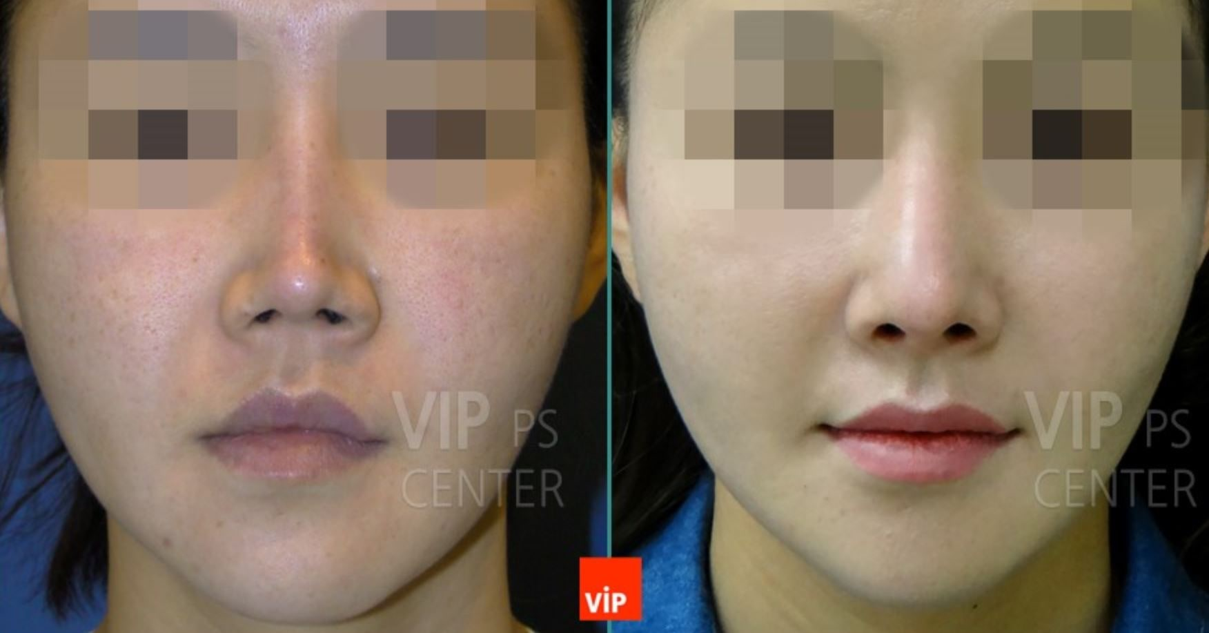 Revision Rhinoplasty Before and After(Deformity)